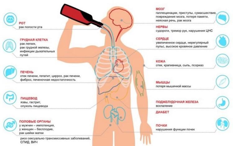 Водка как профилактика атеросклероза