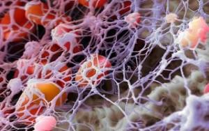 Что такое фибриноген в анализе крови повышен. Уровень фибриногена понижен — что делать