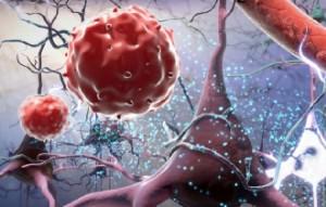 Как быстро повысить белок в организме. Как избавиться от варикоза